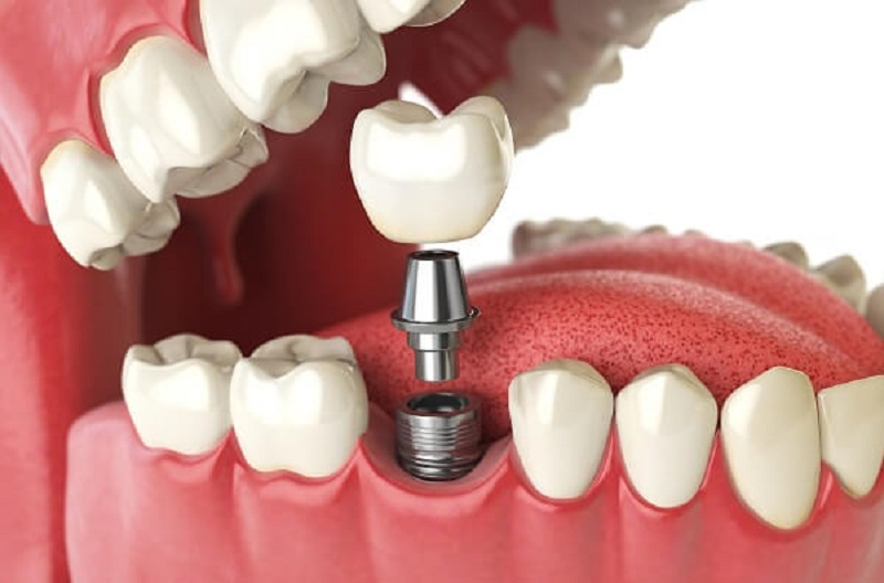 Răng Implant được cấu tạo với 3 bộ phận chính gồm có trụ Implant, mão răng sứ và đầu kết nối Abutment