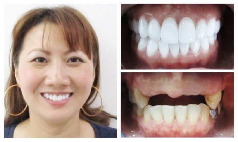 Tìm hiểu điều kiện để thực hiện trồng răng