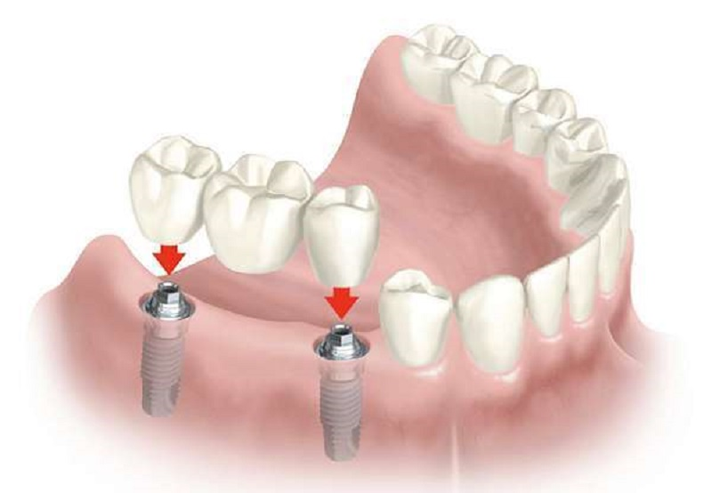 Bác sĩ sẽ thực hiện mài 2 răng thật ở 2 bên để làm trụ răng