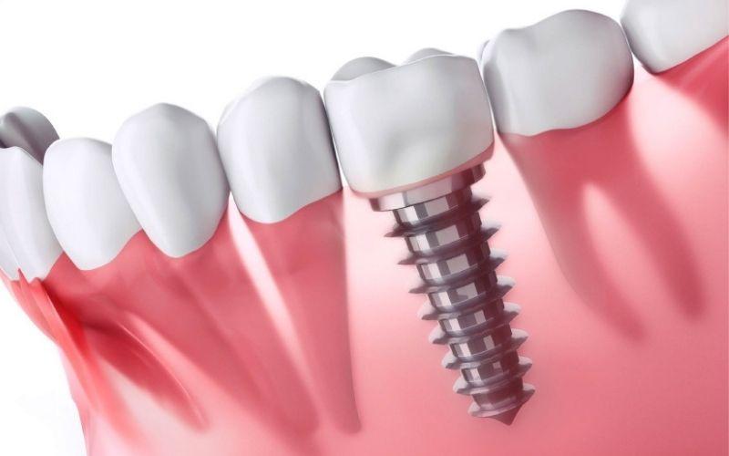 Viêm nhiễm quanh trụ Implant là biến chứng không thể coi thường
