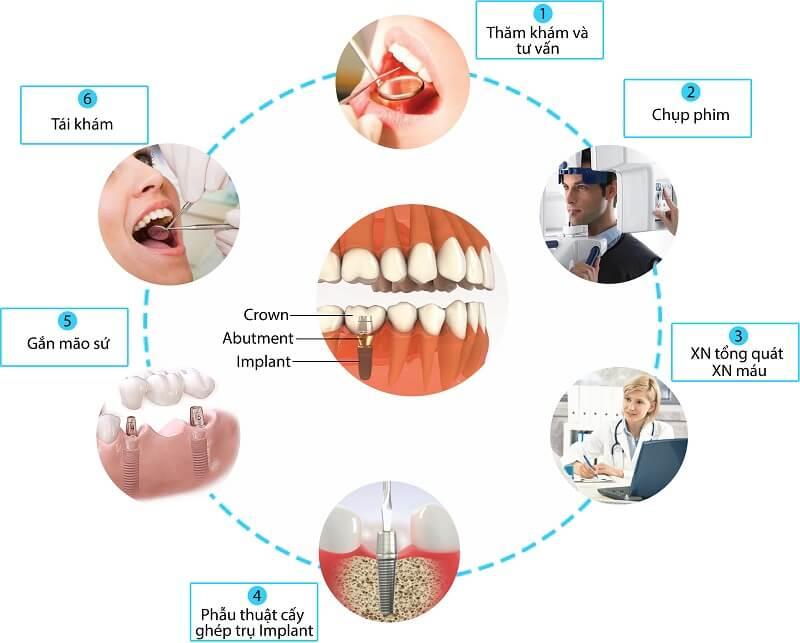 Quy trình trồng răng Implant chi tiết nhất