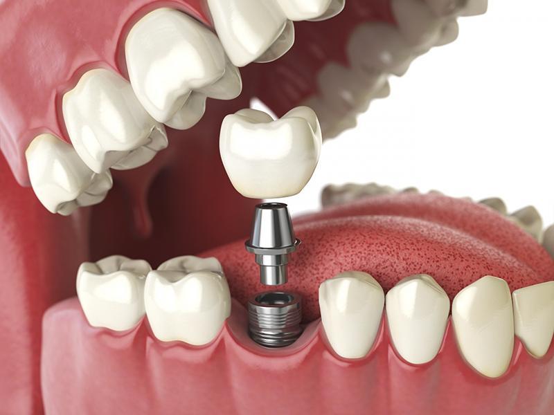Trồng răng bằng phương pháp Implant không hề gây ra những tác hại ảnh hưởng tới sức khỏe