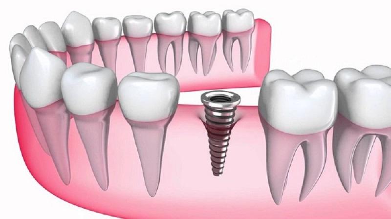 Trước khi cấy ghép Implant, người bệnh sẽ được kiểm tra sức khỏe tổng thể