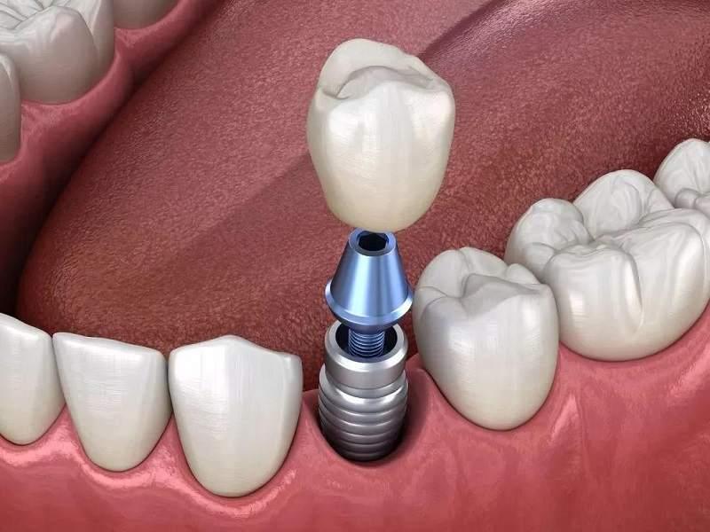 Cây trụ Implant có thể gây cảm giác đau