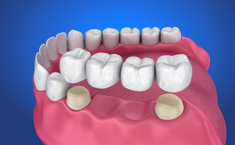 Làm cầu răng sứ bị đau nhẹ do tiến hành mài cùi răng ở ngoài để làm trụ