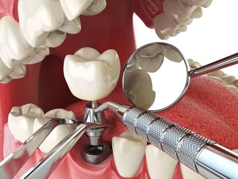 Trồng răng giả có đau không? Có đau nhưng tùy từng mức độ
