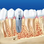 Trồng răng cấm với cấy ghép Implant là kỹ thuật hiện đại